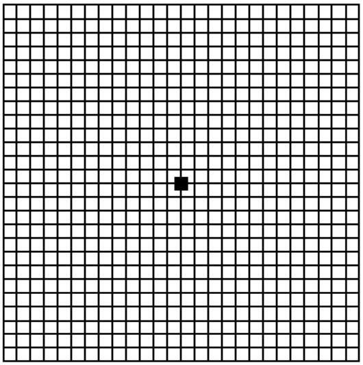 macular degeneration test - photo #2
