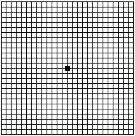 Amsler-Grid-for-checking-for-Macular-Degeneration-by-Dr.-Trent-McKinney